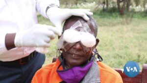 Read more about the article Kenya Strives to Eradicate Blindness-Causing Trachoma | Voice of America