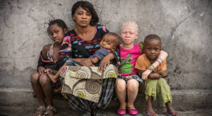 Read more about the article Witchcraft killings of people with albinism have risen during the COVID-19 pandemic, says UN expert  